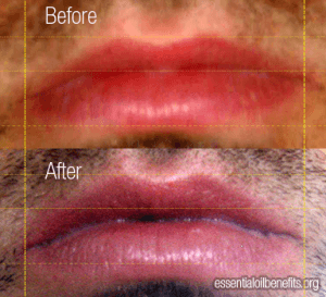 Cinnamon Oil Lip Plumper Before and After